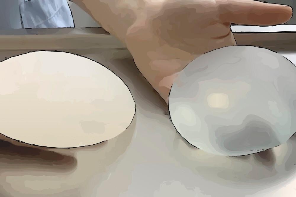 n du sein avec prothèses sont rarement Les résultats esthétiques des reconstructions sont souvent mauvais et il existe certains dangers à leur emploi.