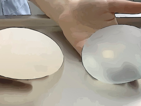 Quelle est la place des prothèses mammaires* dans la reconstruction du sein ?