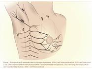 Chirurgie des cancers du sein : comment diminuer (ou supprimer) la douleur ?