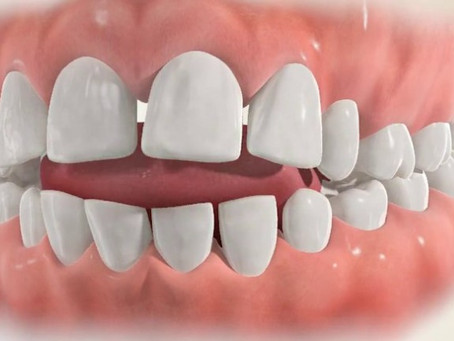 5 Reasons you Should get Treatment for your Tongue Thrust