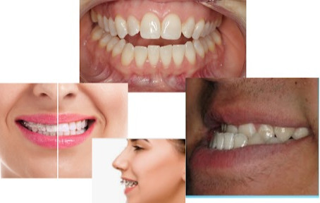 Muscle Assessment and Structured Exercise is Necessary for Braces & Orthodontic Treatment