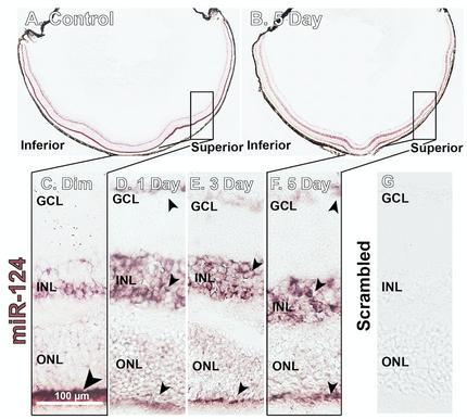 Publication: microRNA-124 in retinal degeneration