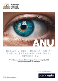DEV - 2021 - Clear Vision Research Final