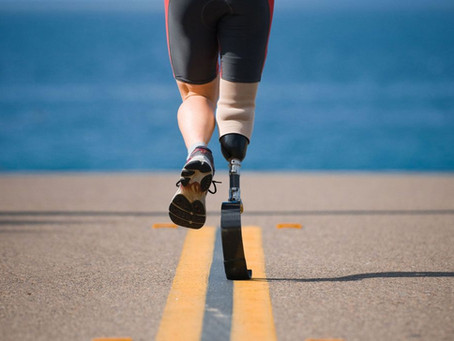Safety, Care and Concern – Using Prosthetic Limbs