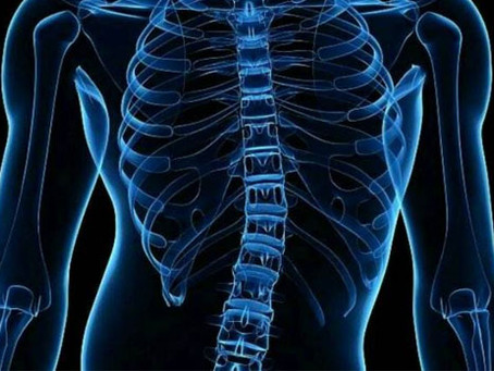 Scoliosis: Treatment, symptoms, and causes
