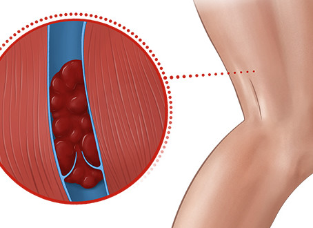 Deep vein thrombosis(DVT): causes, symptoms, prevention