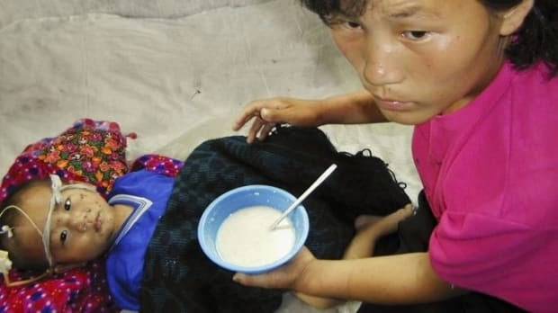 3-year-old Song Chul being fed vitamins supplied by United Nations.