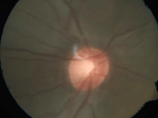 Glaucoma disc evaluation by Glaucoma spe