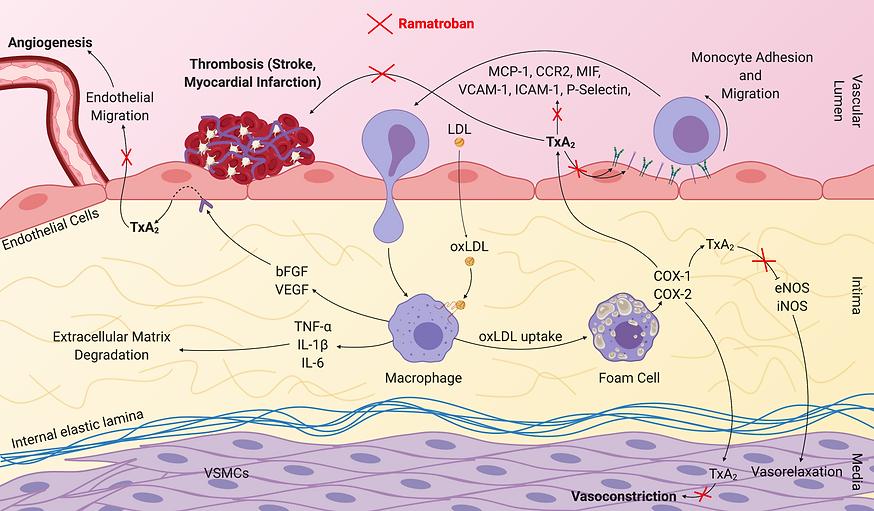 Atherosclerosis (12).png