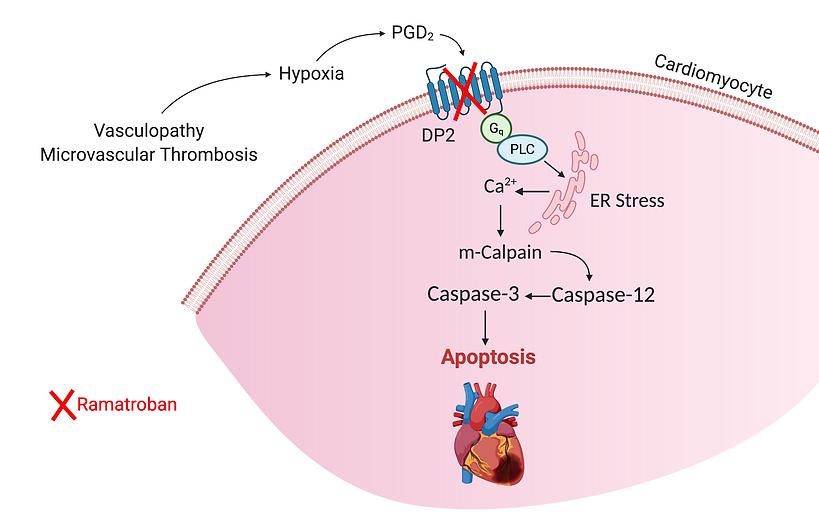 Myocarditis in COVID-19 and SCD copy (1)