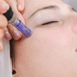mesotherapie visage.jpg