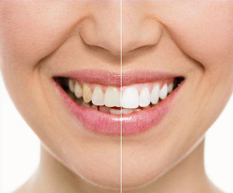 teeth_whitening_edited.jpg