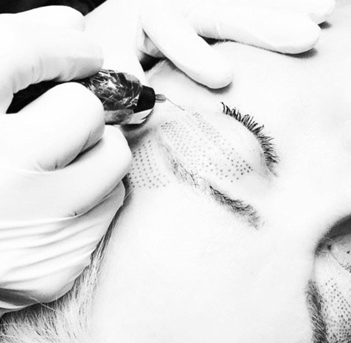 Plasma Skin Lift & Tightening