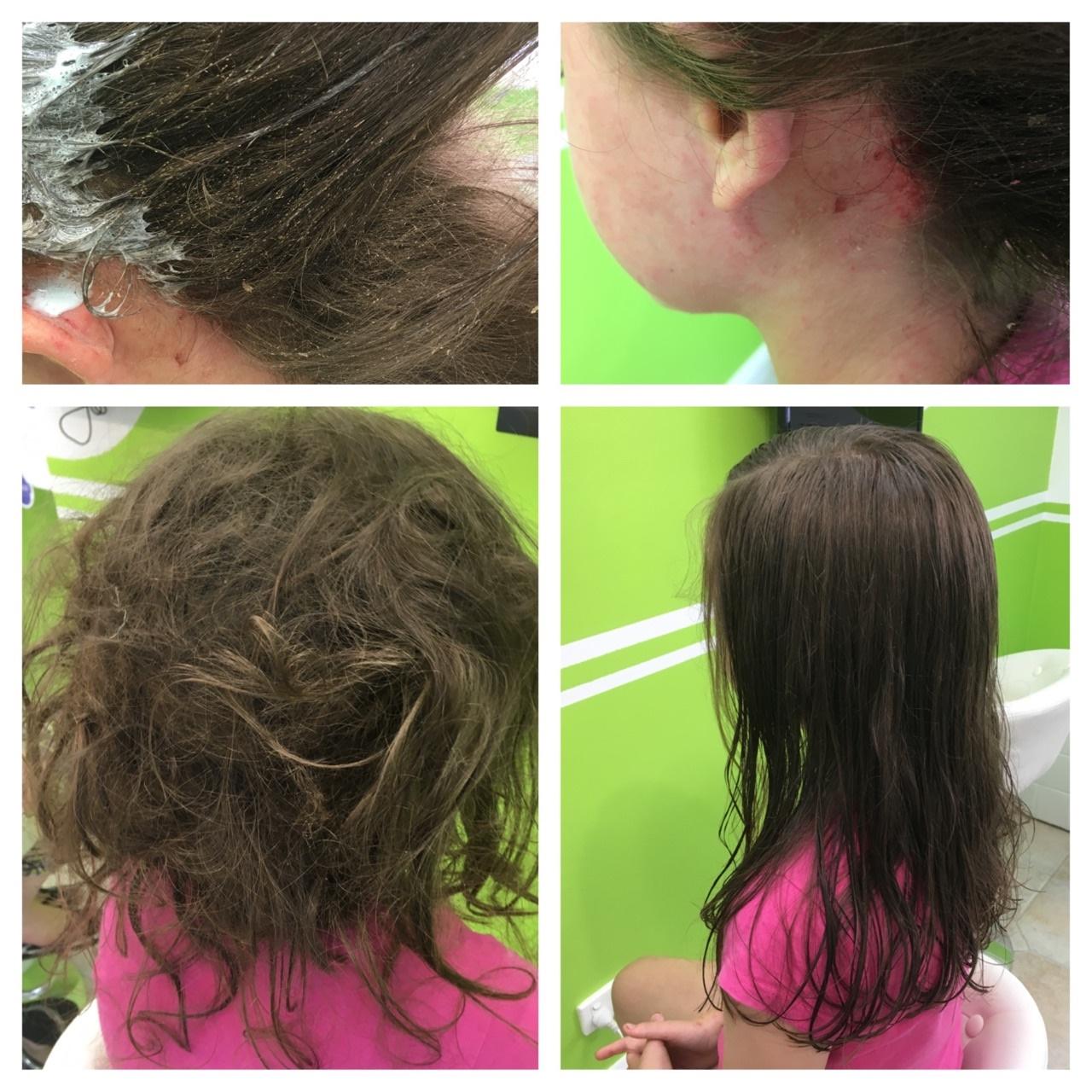 Nitpro - Severe head lice