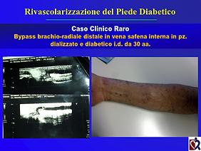 Baraldi - Chirurgia piede diabetico_028.