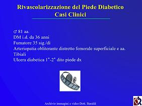 Baraldi - Chirurgia piede diabetico_022.