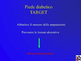 Baraldi - Chirurgia piede diabetico_006.