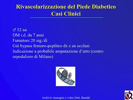 Baraldi - Chirurgia piede diabetico_020.