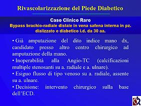Baraldi - Chirurgia piede diabetico_025.