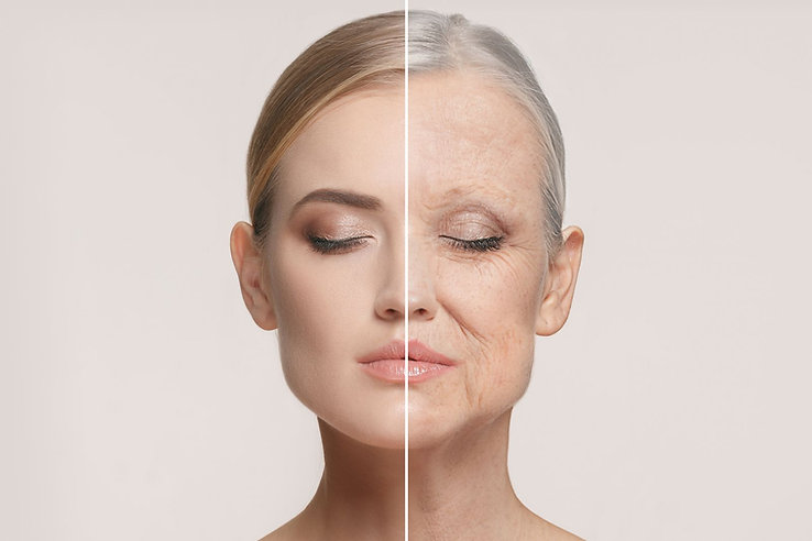 Facial aging and sagging