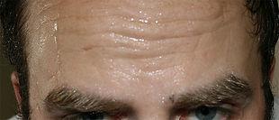 Dr Jake Sloane Sweatox hyperhydrosis