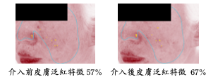 skin redness features.png