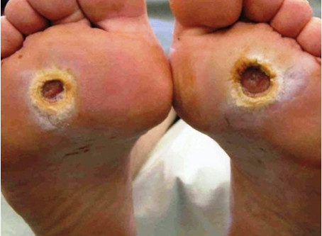 Everything You Need to Know About Diabetic Foot Ulcers