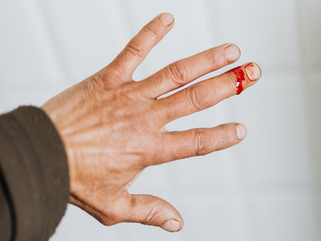 What is a Laceration and How Do You Treat Them?