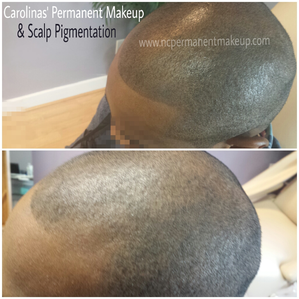 Scalp Pigmentation Client B