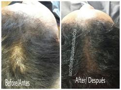 Female Hair Pigmentation