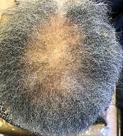 Hairr%20loss%20%2019-12-9_edited.jpg