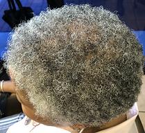 hair%20loss%2019-27-12_edited.png