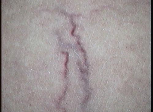 arañas vasculares malaga, tratamiento arañas vasculares malaga, laser arañas vasculares malaga, cuperosis malaga
