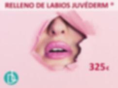 RELLENO DE LABIOS JUVEDERM.jpg