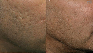 subcision rolling acne scars
