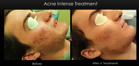 acne_treatment_isolaz_male_6_sessions-2.jpg