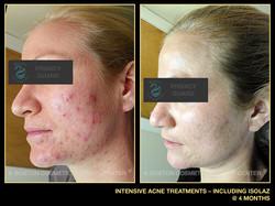 acne7.jpg