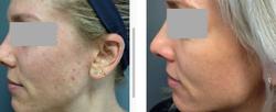 BAS Intensive Acne Treatment 6-weeks