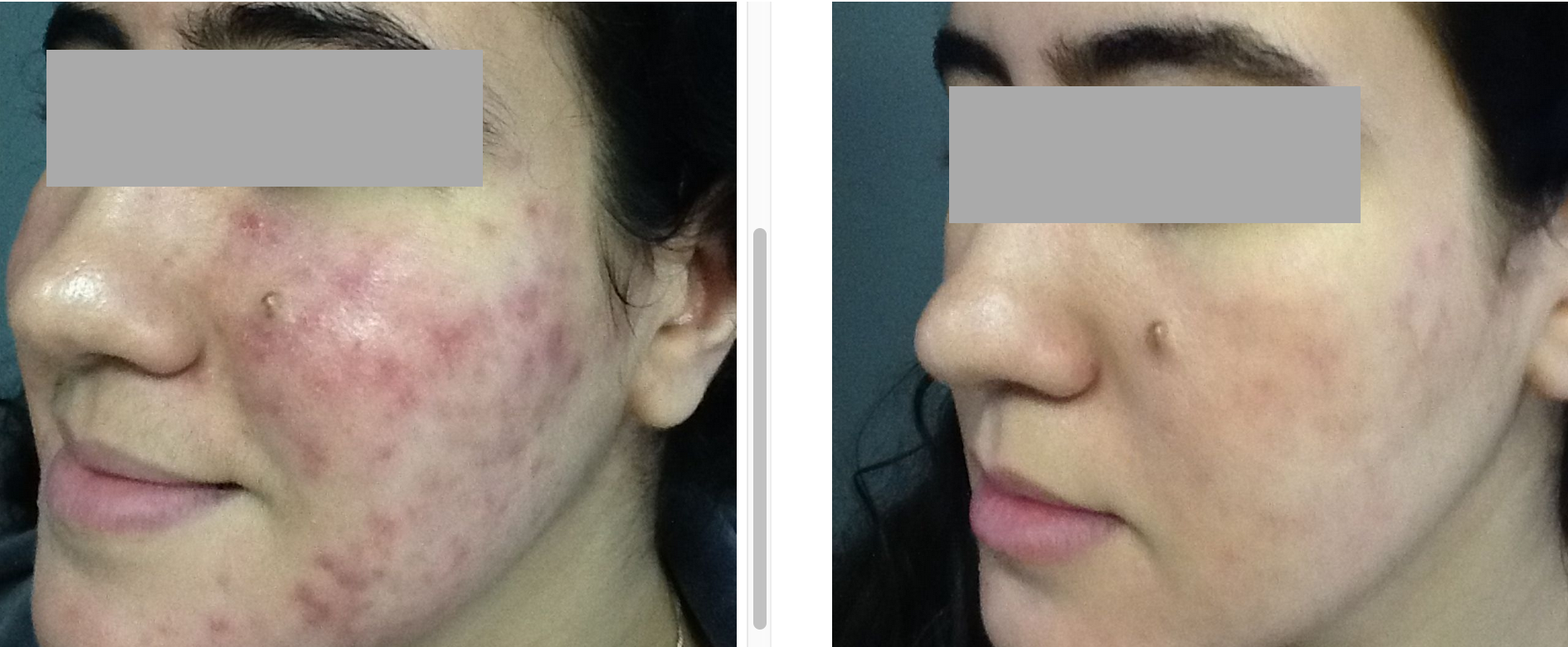 GD Intensive Acne Treatment 8-weeks