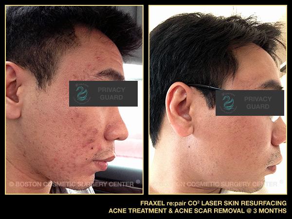 1075-fraxel-repair-laser-acne-treatment-scar-removal.jpg
