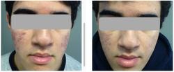 BAS Intensive Acne Treatment 9-weeks