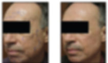 Fractional Acne Scar Treatment