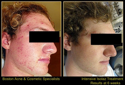Boston-acne-treatments-Ishoo