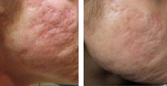 subcision acne scars
