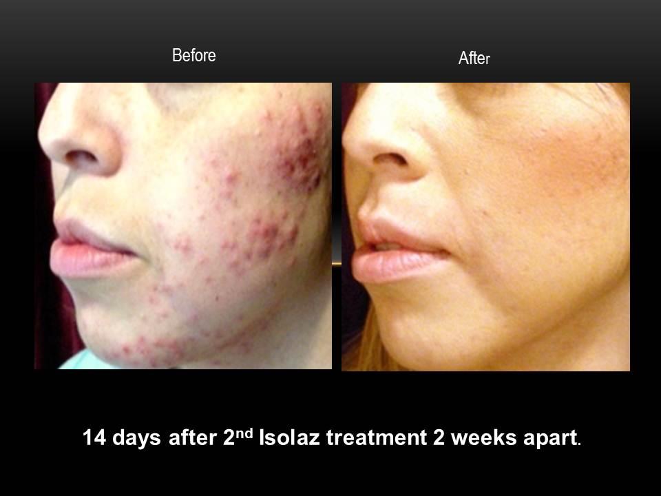 Ishoo-Isolaz-before-after.jpg