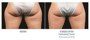 coolsculpting fat removal without surgery