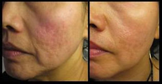 acne punch excision