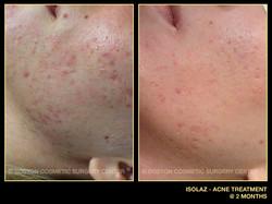 Boston isolaz-acne-treatment.jpg