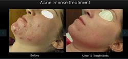Boston Acne Specialists acne protocol