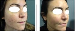 KA Intensive Acne Treatment 8-weeks